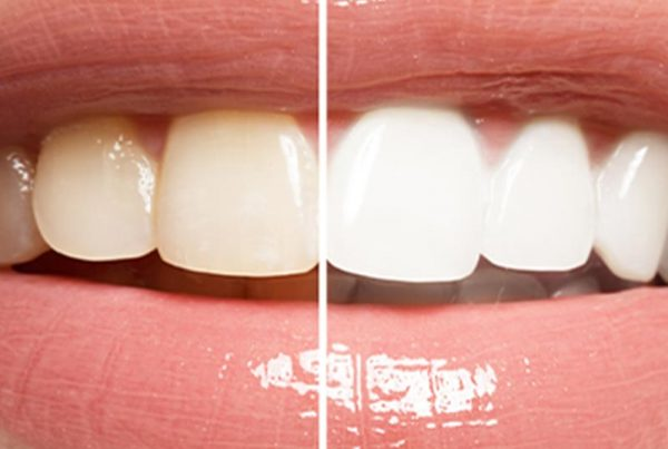 before and after tooth whitening comparison photo